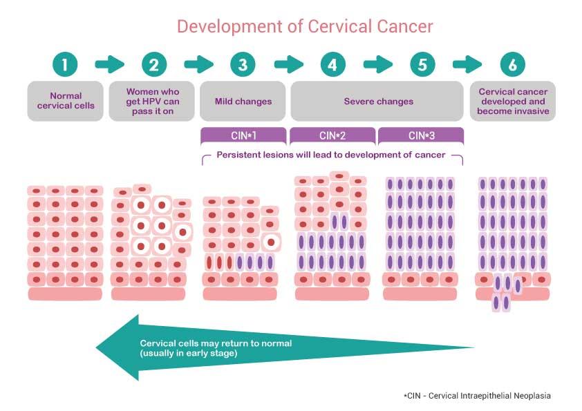 curs de tratament antihelmintic ce este the human papillomavirus can cause cancer